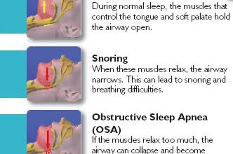 Difference Between Snoring And Apnea