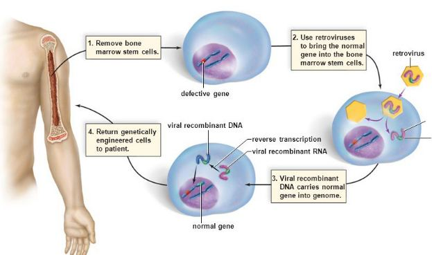 Use of viruses in gene therapy